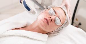 IPL acne treatment
